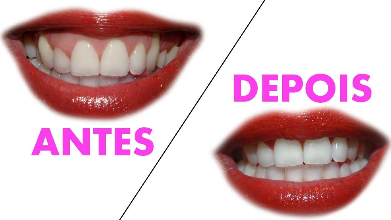 Como Clarear Os Dentes Receita Caseira Youtube