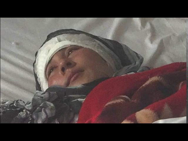 Afghan woman's ears cut off by husband