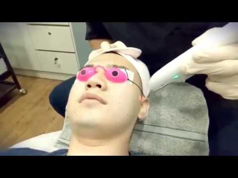 Laser Face Lifting Treatment @ Kuala Lumpur