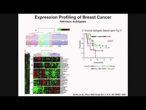 Breast Cancer Diagnosis and Treatment - Stanley Lipkowitz