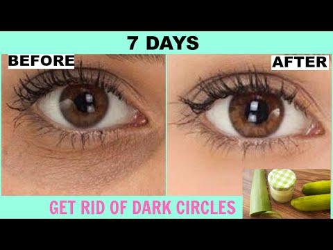 How To Remove Dark Circles Under Eyes At Home | DIY Dark Circle Treatment