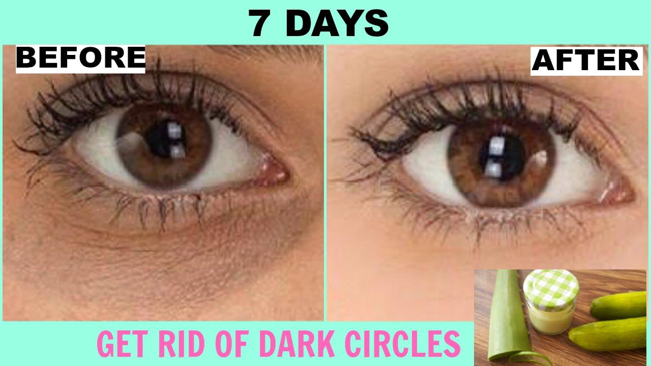How To Remove Dark Circles Under Eyes At Home | DIY Dark ...