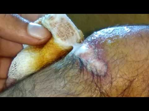 how to remove bandage from wound(without pain)