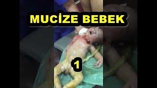 Mucize Doğum 1