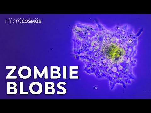Amoebas: Occasional Brain-Eaters