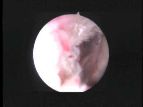 GH L Arthroscopic Subscapularis tendon repair 7.1.13