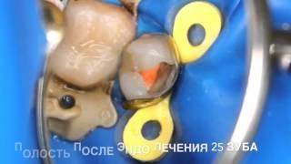 Постановка пломбы после лечения кариеса , удаление нерва зуба , пломбировка каналов зуба(, 2016-01-16T12:23:07.000Z)