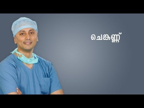 What is Conjunctivitis?  Explanation in Malayalam