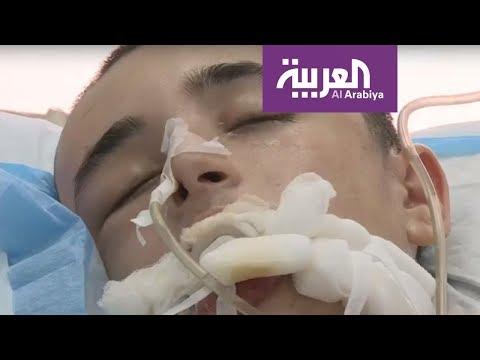 لبنان.. لعبة الحوت الأزرق تضيف ضحية جديدة لطفل حاول الانتحار  - نشر قبل 3 ساعة