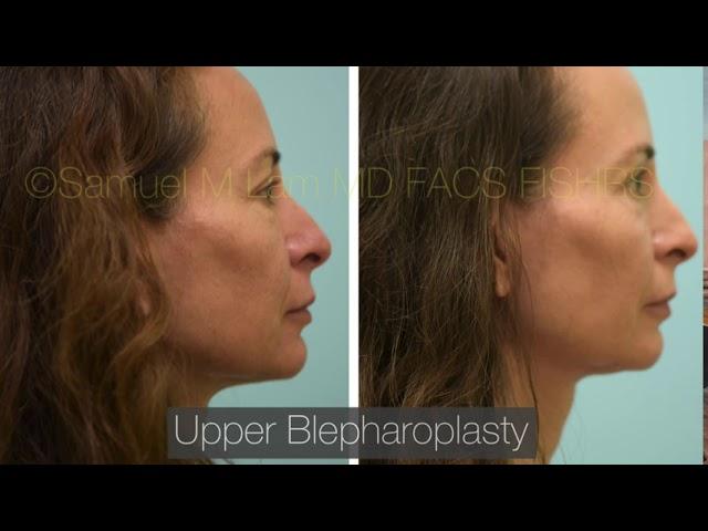 Dallas Upper Blepharoplasty Before & After
