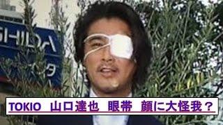http://bit.ly/29Odnzg TOKIO山口達也 顔に大怪我!? 眼帯姿でZIPに登...