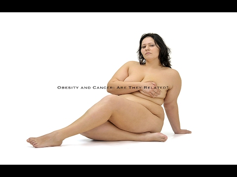 Obesity Increases the Risk of MANY Cancers | Caloric Restriction vs Plant Based Diets which HELP's