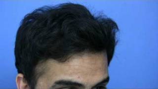Hair Transplant by Dr Hasson - 4200 Grafts - 1 Session