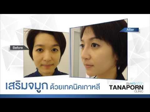 Review เสริมจมูก ที่ ธนพรคลินิก ด้วยเทคนิคเกาหลี