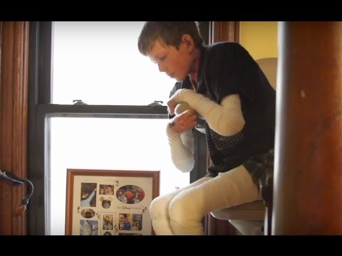 Epidermolysys bullosa: Daily tasks excruciating for teen with rare disease