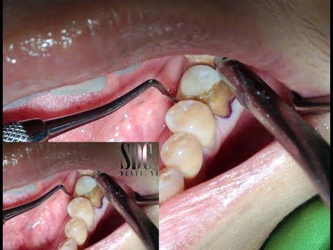 ครอบฟัน การทำครอบฟัน (Dental Crown)