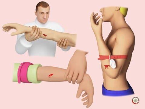 Оказание первой помощи при различных травмах. Реферат