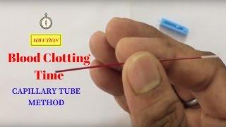 Blood clotting time determination by capillary method ( ब्लड क्लोटिंग टाइम कैसे पता लगाएं) thumbnail