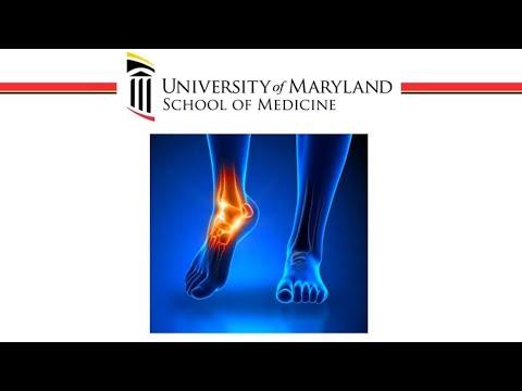 Webinar on Foot & Ankle Arthritis