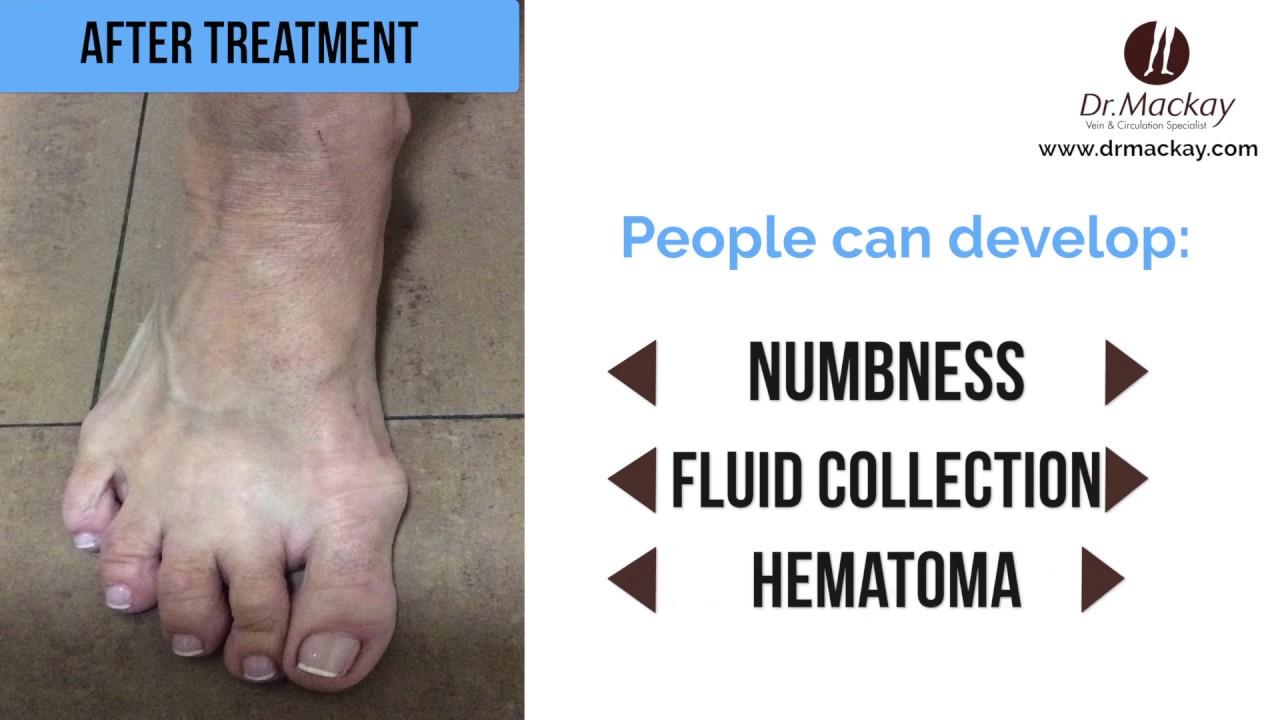 varicose foot medicina oamenilor
