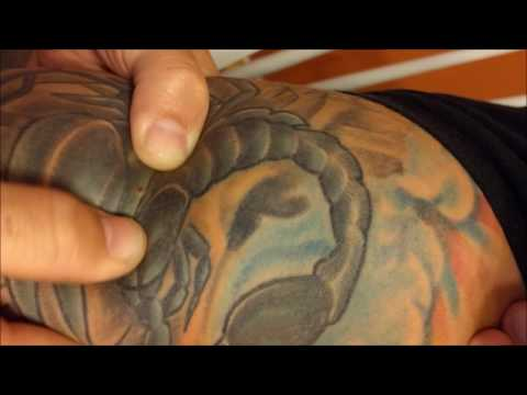 Marine's Infected Tattoo Pimple