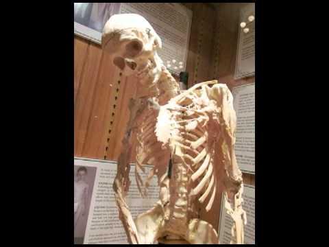 Brian Ciach Collective Uncommon Ii The Progressive Ossification Of Harry Eastlack Youtube
