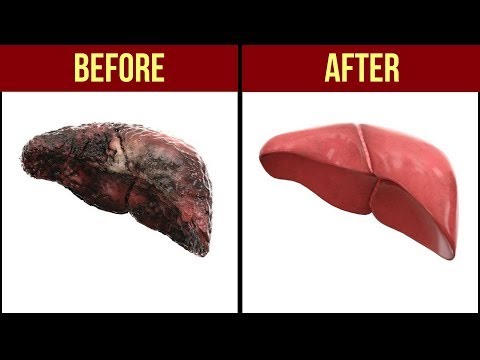 10 Foods That Naturally Cleanse the Liver / Naturally Cleanse Liver / Liver detox