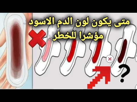 Ligums Dzeina Ostina Vaditajs ماهو سبب نزول دم الحيض اسود Ipoor Org