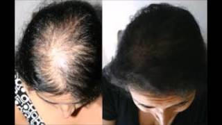 How To Naturally Regrow Lost Hair In 15 Minutes A Day - How To Treatment Hair Loss