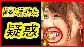 【驚愕】戸田恵梨香、歯茎を隠す理由がヤバ過ぎる!2つの疑惑に・・・...