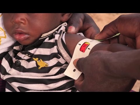 A very special bracelet: A routine to fight under-nutrition in Burkina Faso