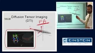Introducing MRI: Diffusion Tensor Imaging (50 of 56)
