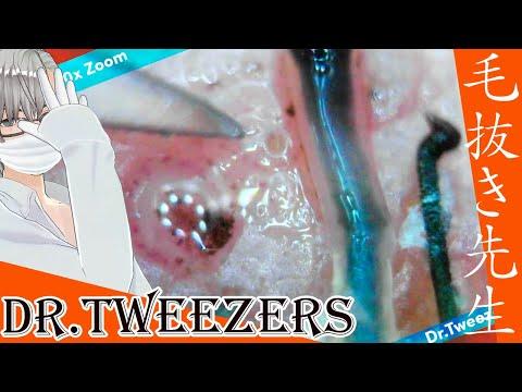 316 [200x Zoom] A fountain full of black liquid Dr. tweezers 毛抜き先生の角栓や毛根