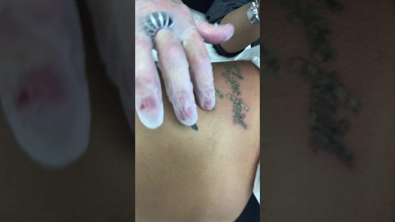 Side Rib Tattoo Removal By Vanish Laser Aesthetics Longview Tyler Texarkana And Shreveport Youtube