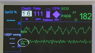 R Series Real CPR Help and See-Thru CPR - v14