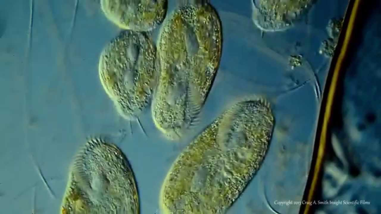Various Ciliated Protozoa. Kingdom Protista. DIC Lighting ...