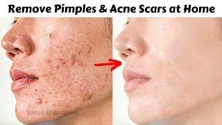 Remove Pigmentation, Dark Spots & Pimples at Home | DIY Neem Cream | Get Spotless & Clear Skin