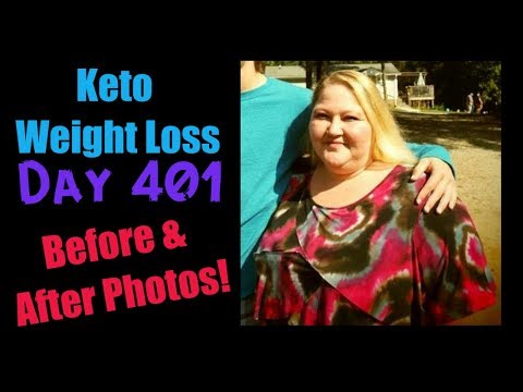 i-lost-100-pounds-in-1-year-on-keto-before-and-after-photos