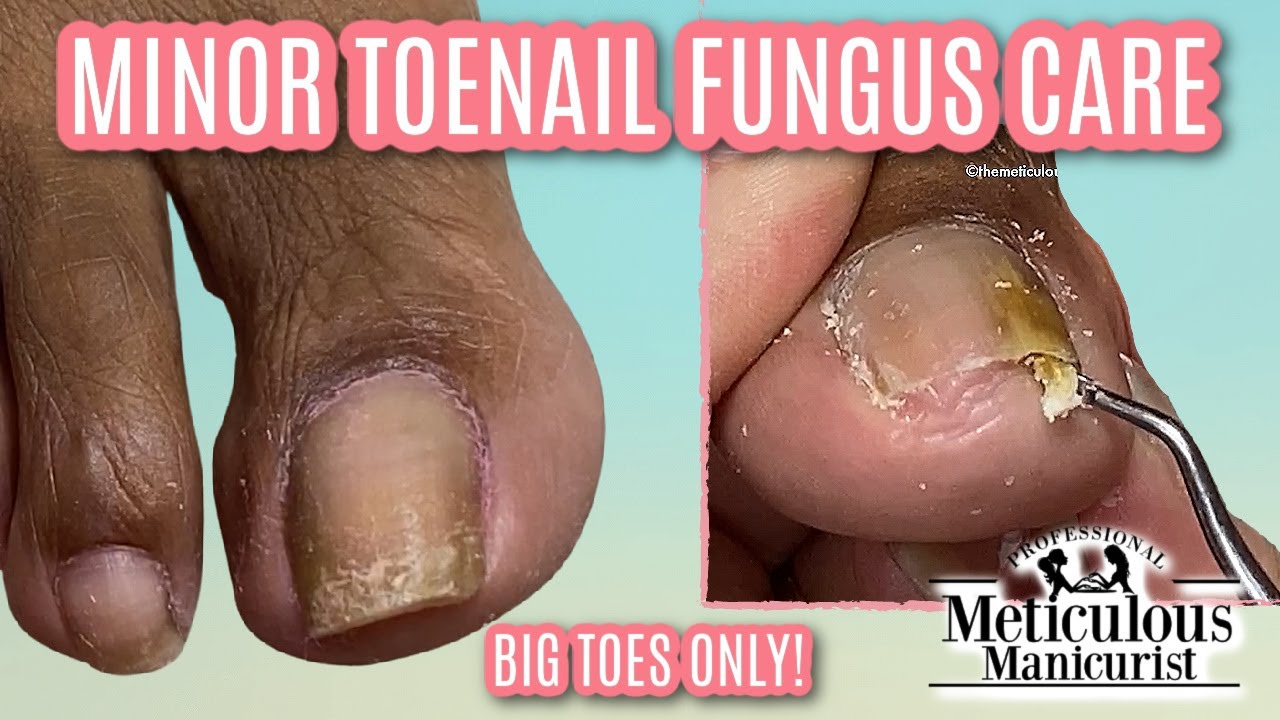 👣HOW TO REVERSE MINOR NAIL FUNGUS 👣