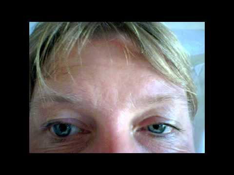 Horner's Syndrome - Causes, Symptoms & Mnemonics