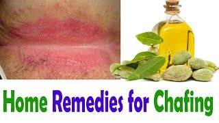 How to Cure Chafing Naturally || Home Remedies for Chafing