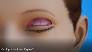 Oculoplastics AAO Ptosis Repair Surgery
