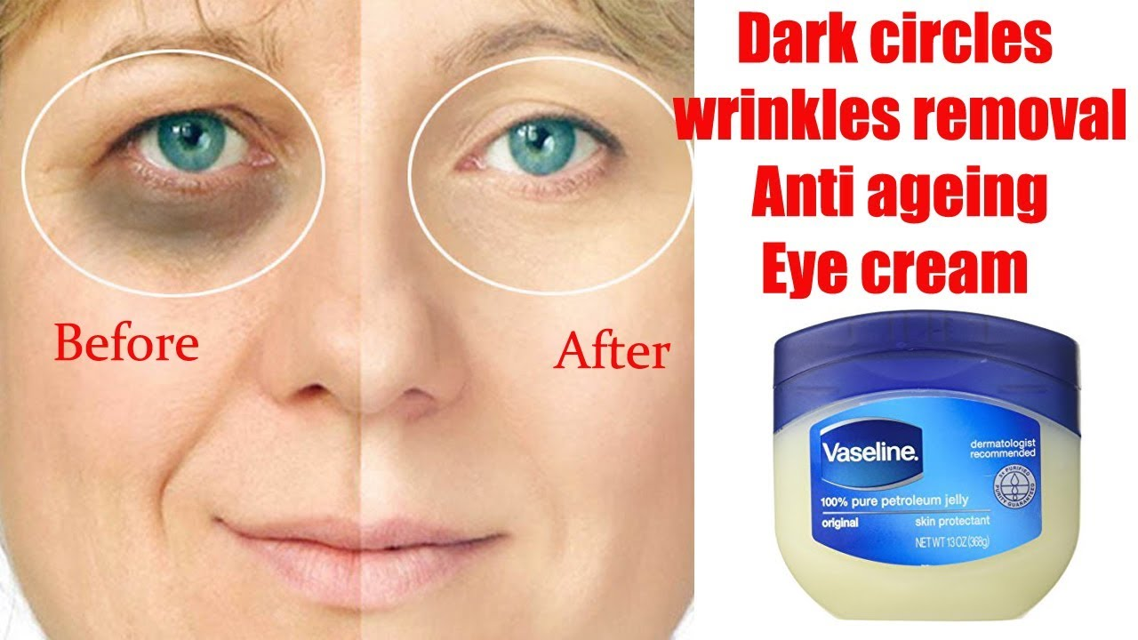 Dark Circles Wrinkles Removal Anti Ageing Eye Cream Diy By