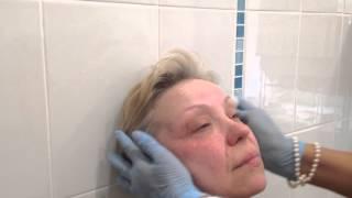 АирисКом Обучение косметологии. Урок по ботоксу