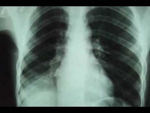 Baghdad medical city,clinical examination video,by dr.Hamza Alsabah(chest xray and ct scan chest))