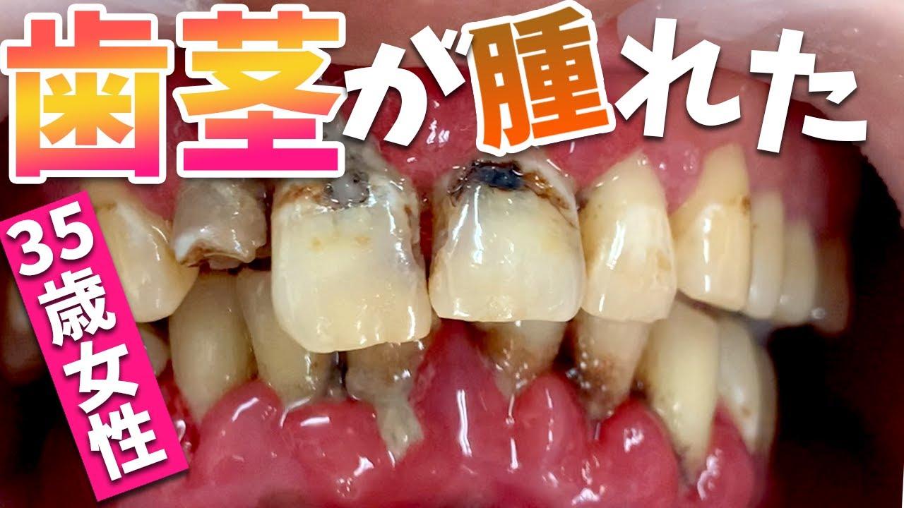 大量歯石で歯茎が腫れた🥺35歳女性🦷