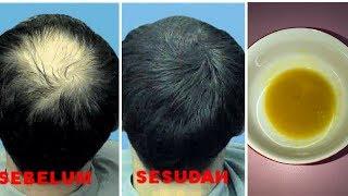 cara ampuh mengatasi rambut rontok dan kebotakan