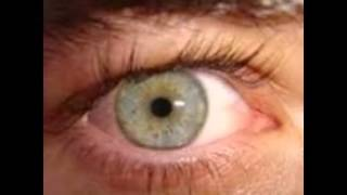 Eye Diseases With Pictures