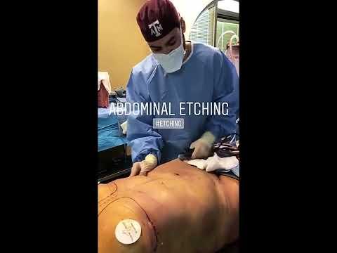 BBL, Lipo 360, Breast Augmentation and Chin Lipo- Dr