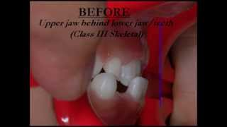 Underbite Correction with Expander and Facemask - Non Surgical - Oasis Dental Milton Part 1 Thumbnail